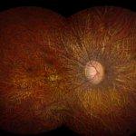Photo of a retina