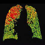 Lungs with green, yellow and red areas.
