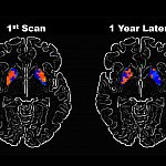 Brain scans taken a year apart show different levels of activity in certain areas.