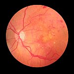 Medical photo of retinopathy