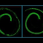 Confocal microscopy images of mouse cochlea.