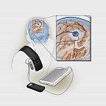 Illustration of implanted deep brain stimulation device