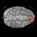 Brain scan showing microbleeds