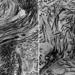 Electron micrographs of scar tissue