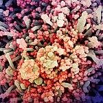 SARS-CoV-2 virus particles
