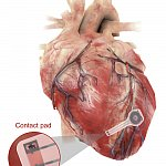 Temporary pacemaker mounted on the heart.