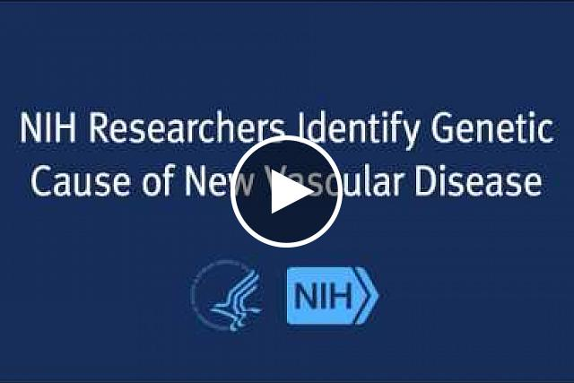 Clinical researchers at the National Institutes of Health's Undiagnosed Diseases Program (UDP) have identified the genetic cause of a rare and debilitating vascular disorder not previously explained in the medical literature. The adult-onset condition is associated with progressive and painful arterial calcification affecting the lower extremities, yet spares patients' coronary arteries.