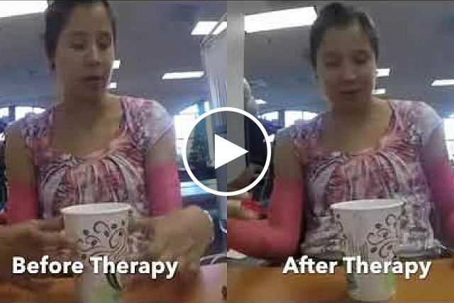 This video from the Edgerton Lab at UCLA shows activity before and after the stimulation therapy.