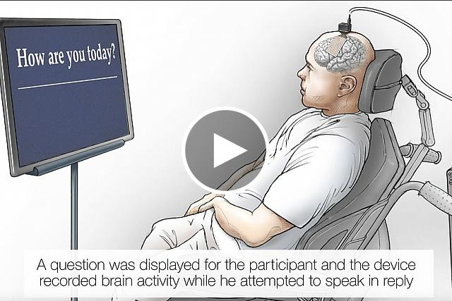 """The video explains the """"speech neuroprosthesis,"""" which enabled a man with severe paralysis to communicate in sentences, translating signals from his brain to the vocal tract into words that appear as text on a screen."""