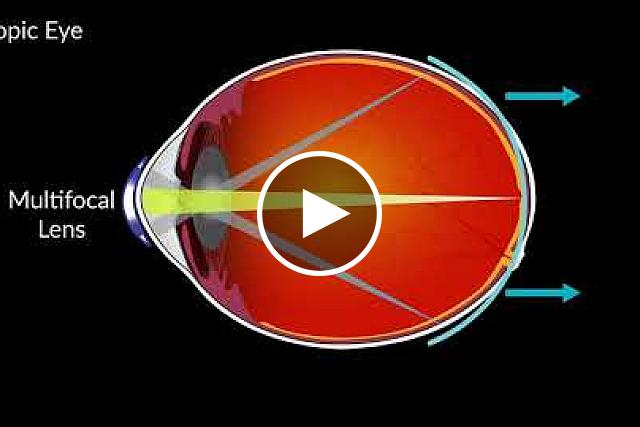 How multifocal contacts can slow the eye growth that causes myopia in children. NEI